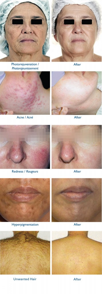 Before and After Intens Pulse Light Treatment